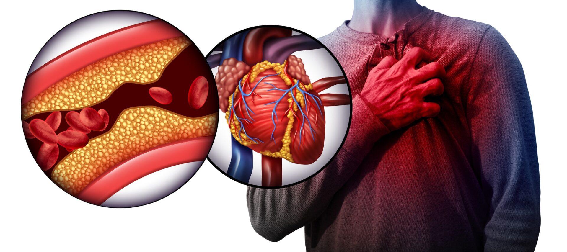 Heart disease Nattokinase